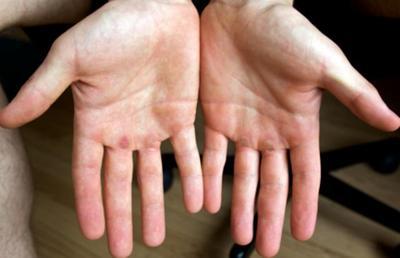 [FORUM] Telapak tangan aku super kering banget, gimana cara mengatasinya ya?