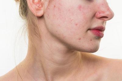 [FORUM] Kenapa ya Jerawat Gampang Banget Muncul di Muka?