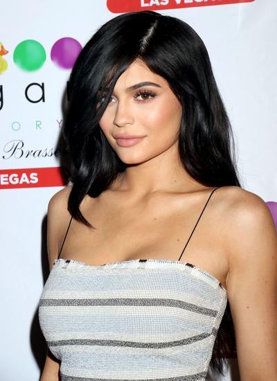 [FORUM] Kylie Jenner Lepas Filler Bibir, Masih Cantik Nggak sih?
