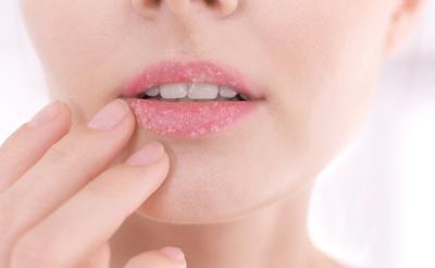 [FORUM] Hobi mengelupas kulit bibir kering sebenernya bahaya nggak ya?