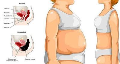 [FORUM] Udah diet tapi Berat badan Gak turun juga!! MINTA TIPSNYA dong! :)