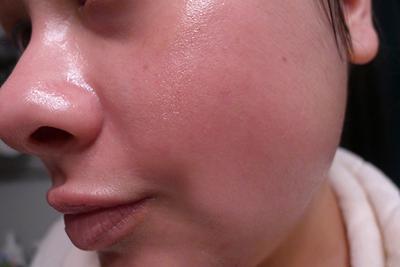 [FORUM] Kulit memerah after facial, wajar gak itu?