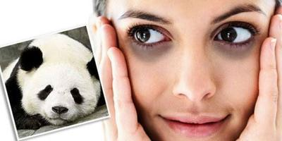 [FORUM]  Cara Menghilangkan Mata Panda, Tolong aku!