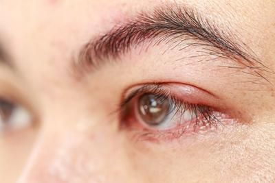 [FORUM] Kelopak Mata aku ada Jendolan, apa karena pakai sonflens ya?