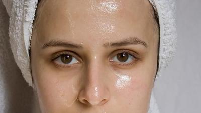 [FORUM] Makan gorengan beneran bikin kulit wajah makin berminyak?
