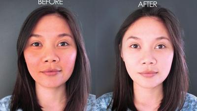 [FORUM] Suntik putih untuk memutihkan kulit instan apakah berbahaya?