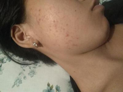 [FORUM] Sabun Muka Yang Cocok untuk kulit berminyak dan berjerawat