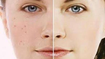[FORUM] Skin Care untuk Menghilangkan Bekas Jerawat