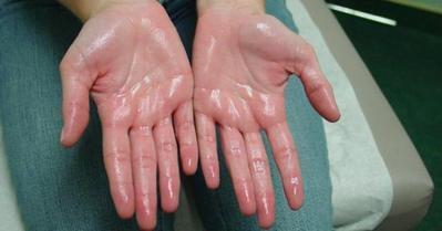 [FORUM] Telapak tangan gampang basah, sebenarnya berbahayakah?
