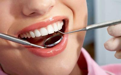 [FORUM] Mau Scaling Gigi, baiknya ke dokter gigi atau puskesmas?