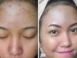 [FORUM] Produk apa yang bisa menghilangkan bekas jerawat untuk kulit sensitif?