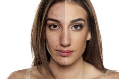 [FORUM] Lebih mending jenis kulit berminyak atau kulit kering?