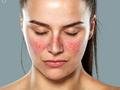 [FORUM] Kulit wajah ruam merah gara-gara gak cocok pakai skincare, pernah?