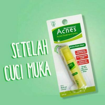 [FORUM] Review Acnes Point Clear, Ternyata Ampuh Kempesin Jerawat!