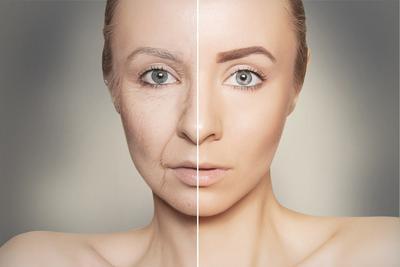 Ladies, Lakukan Cara Unik Ini untuk Menghilangkan Kerutan Pada Wajah