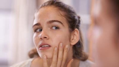 [FORUM] Pernah nggak kulit wajah tiba-tiba bruntusan tapi nggak tahu penyebabnya?