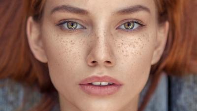 [FORUM] Freckles di wajah apakah bisa dihilangkan?