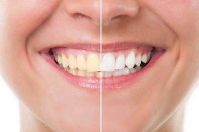 [FORUM] Habis Bleaching Gigiku Jadi Lebih Sensitif..
