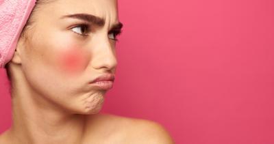 [FORUM] Gimana sih cara pilih skincare untuk kulit sensitif?