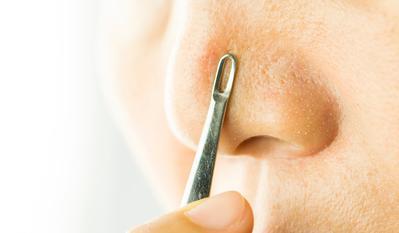 [FORUM] Cara alami hilangkan komedo hitam di hidung yang ampuh