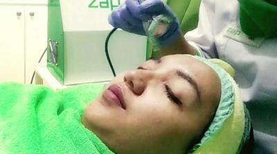 [FORUM] Sharing pengalaman treatment di ZAP