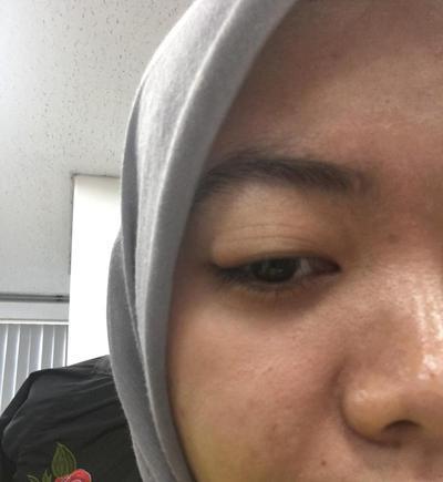 [FORUM] Ternyata bintitan, penyebabnya debu dan mata yang lelah pernah mengalaminya?