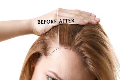 Ternyata, Begini Cara Paling Tepat untuk Atasi Rambut Rontok!