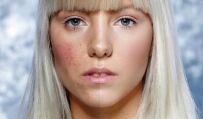 [FORUM] Pernah Breakout Parah Karena Skincare Palsu? Cerita dong