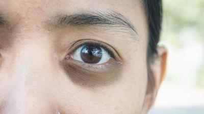 [FORUM] Gimana yaa cara ngilangin mata panda? Saranin produknya yang mantul dong guys