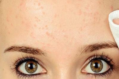 [FORUM] Help! Cara ilangin bruntusan di wajah gimana ya?