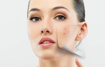 Atasi Berbagai Masalah Kulit dengan Rangkaian Produk Jafra Skincare, dari Jerawat - Flek Hitam!