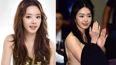 Ngeri! Gagal Operasi Plastik Bikin Wajah 4 Artis Korea Ini Seram Abis!