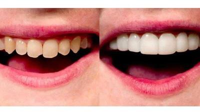 [FORUM] Veneer gigi??