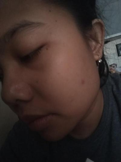 [FORUM] Setelah pemakaian Viva Milk Cleanser-Face tonic Lemon Hari Pertama