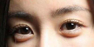 [FORUM] Skincare apa yang ampuh untuk menghilangkan kantung mata???