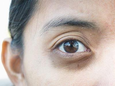 [FORUM] Gimana cara hilangin mata panda dan kerutan dibawah mata yang paling ampuh?
