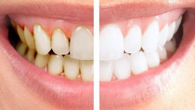 Gak Perlu Aneh-Aneh, Bahan-Bahan Alami Ini Bisa Jadi Cara Menghilangkan Karang Gigi