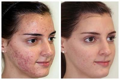 Manfaat dari Laser Wajah