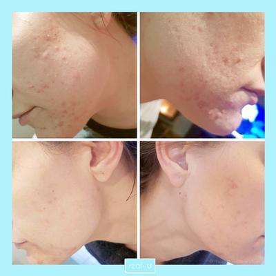 Cara Jitu Menghilangkan Jerawat di Malam Hari dengan Pimple Patch