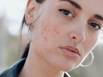 Skincare Routine Ini Cocok Buat Kamu yang Bermasalah dengan Jerawat, Terjangkau!