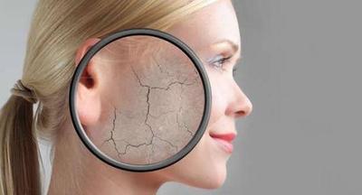 Ada 6 Tips Perawatan Wajah Untuk Kulit Kering Biar Tetap Sehat dan Lembap