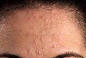 [FORUM] Penyebab kulit beruntusan apa sih?