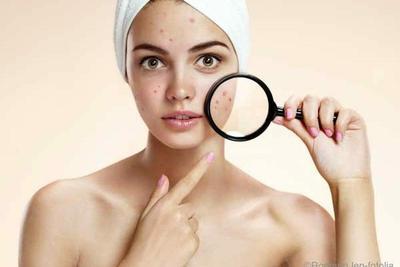 5 Produk Skincare Ini Ampuh untuk Menghilangkan Flek Hitam Pada Wajah, Ladies! Kamu Wajib Coba
