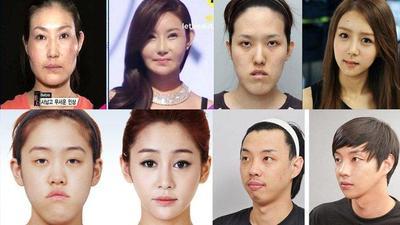 9 Operasi Plastik Paling Populer di Korea Selatan, Tertarik Coba?