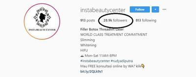 [FORUM] Melakukan Perawatan Filler dan Tanam Benang Hidung di Insta Beauty Center