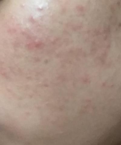 [FORUM] Ada rekomendasi Scrub st. Ives yang cocok untuk kulit sensitif dan berjerawat?