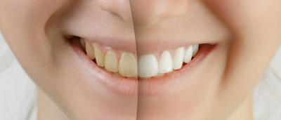 Ingin Putihkan Gigi, Lebih Baik Bleaching atau Veneer?