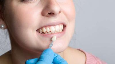 Veneer Putihkan Gigi Secara Instan, Lakukan 4 Tips Ini untuk Merawatnya