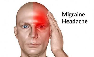 Siapa yang tidak tahu apa itu migrain?