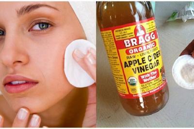 3. Gunakan Cuka Apel